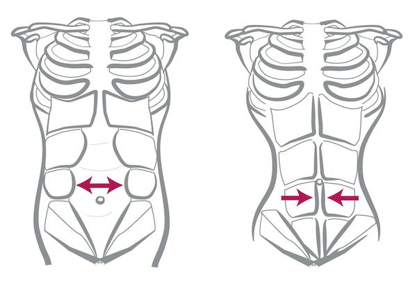 Diastasis Recti: What You Need To Know