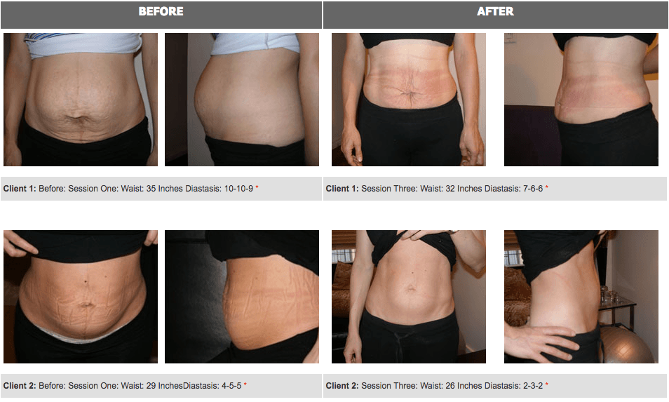 Before & After Diastasis